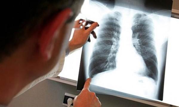 akciğer-kanserine-ne-iyi-gelir