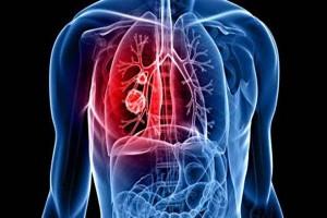 Akciğer Kanserinin Bitkisel Tedavisi