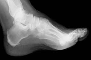 Kemik İltihabı Nedenleri ve Tedavisi